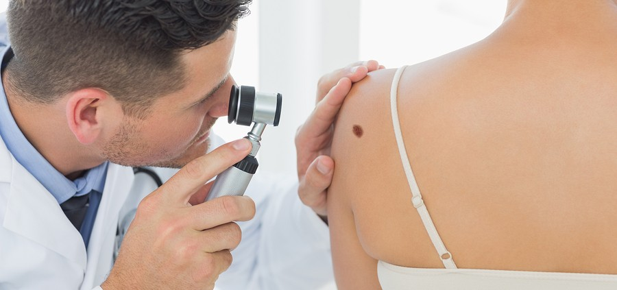 Male doctor examining mole on back of woman in clinic